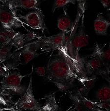 B16 Cells